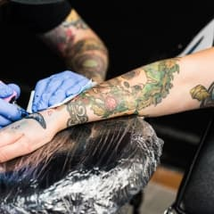 ta bort tatuering göteborg