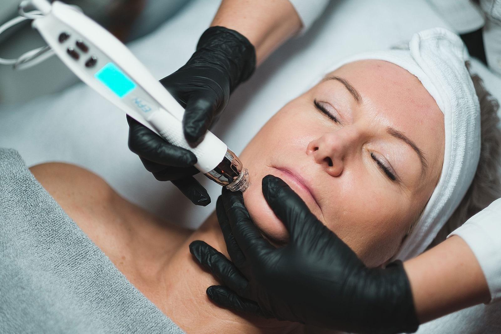 Behandling genom EPN microneedling