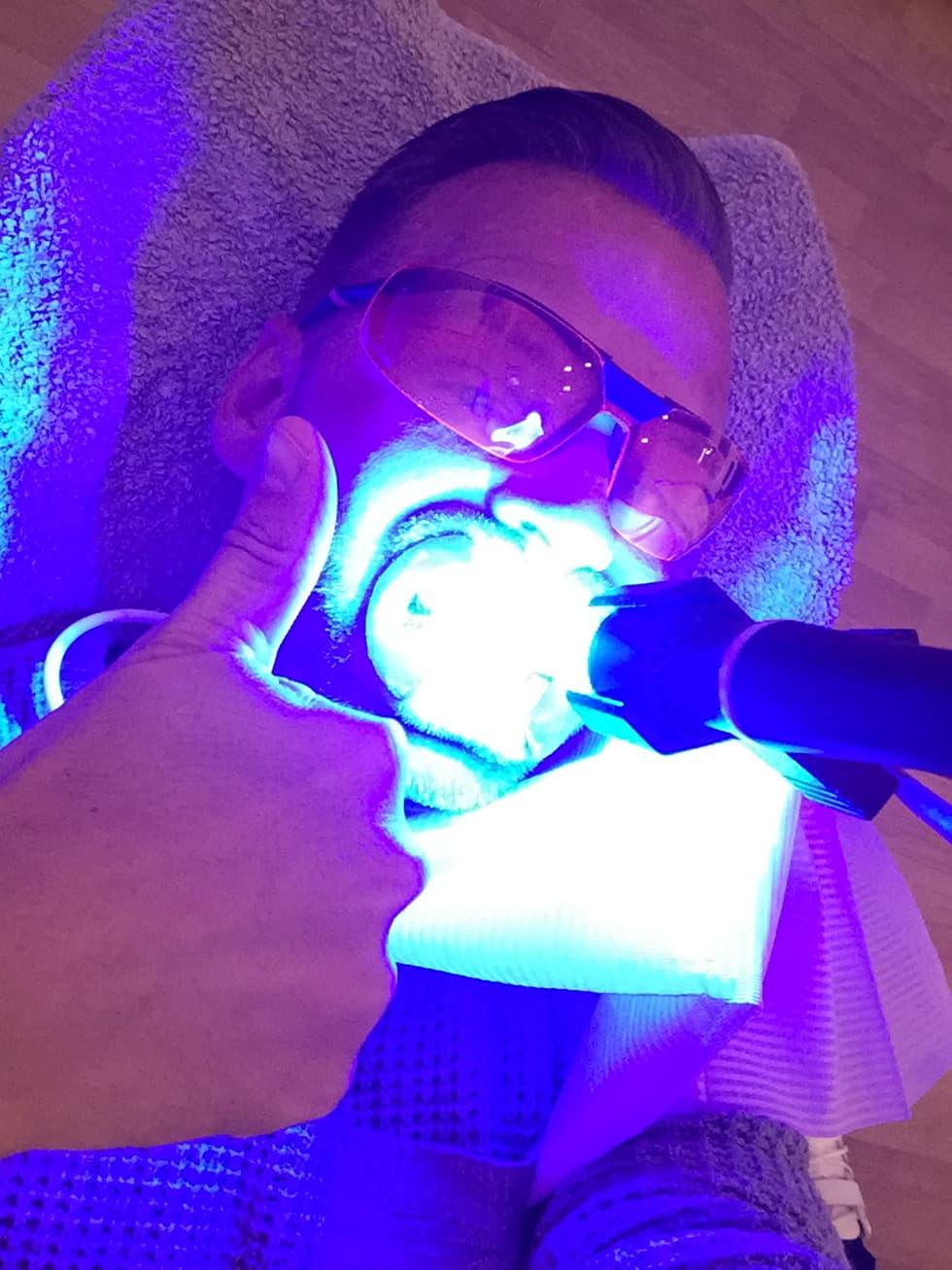 Tandblekning göteborg erbjudande