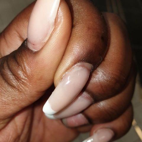 Luft under nageln, så på nästan alla naglar – Bild från Hollywood Nails Center av Natacha M.